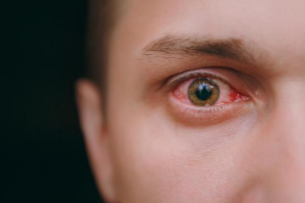 ابتلای سلول های چشم به کرونا